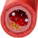 Сахарный диабет —симптомы, виды, лечение и профилактика заболевания