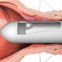 Геморрой — что за болезнь, симптомы, признаки и способы лечения
