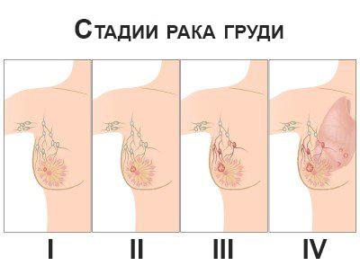стадии развития рака молочных желез