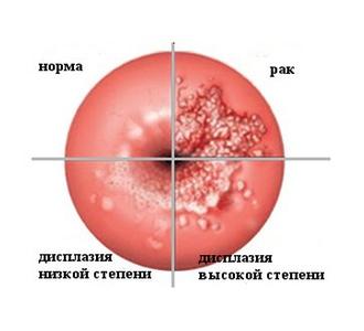 рак матки как выглядит