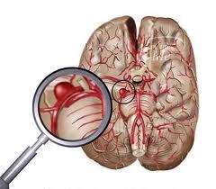 Аневризма — аорты, головного мозга и сосудов мозга, симптомы, лечение операцией