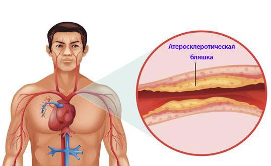 откуда берется атеросклероз