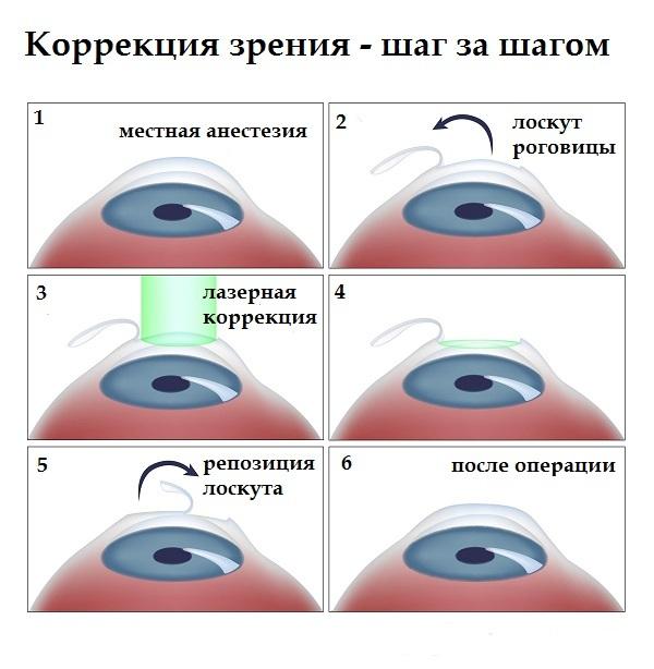 лазерный кератомилёз фото