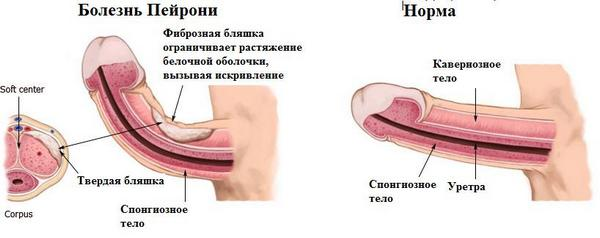 фото болезнь пейрони