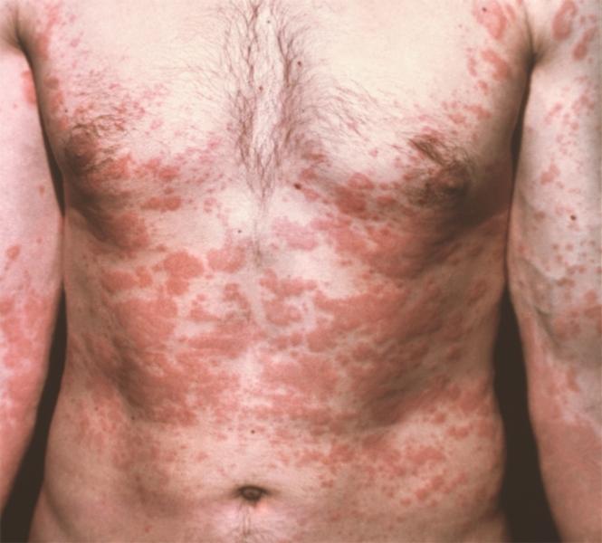 Криптококкоз у человека — симптомы, фото, способы лечения