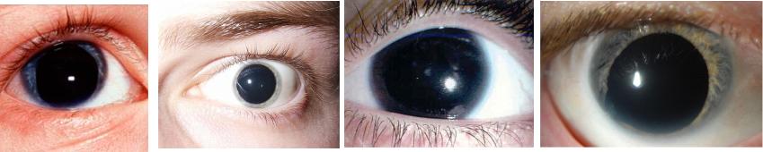 аниридии глаз фото