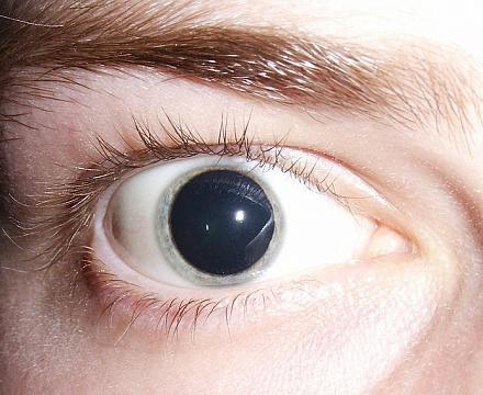 аниридия фото глаза