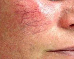 Синдром атаксии-телеангиэктазии или синдром Луи-Бар — причины, способы лечения
