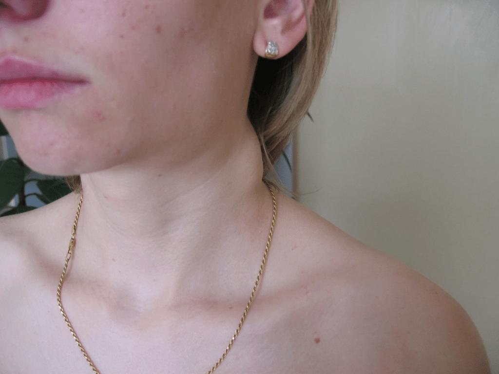 увеличенный лимфоузел при бартонеллезе