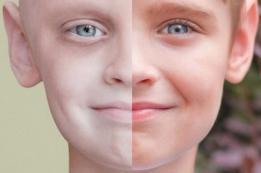 Симптомы лейкоза у детей — симптомы лейкоза с фото