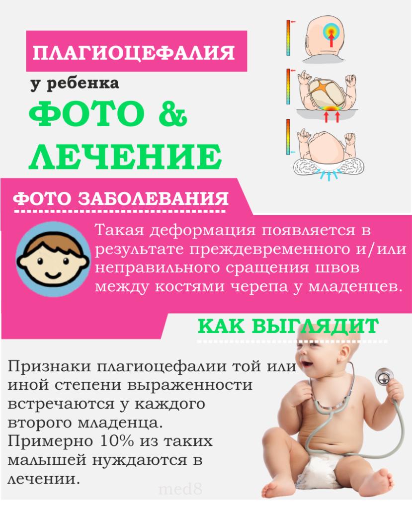 плагиоцефалия у ребенка
