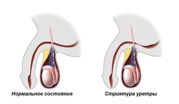 Стриктура уретры — лечение, операция, симптомы