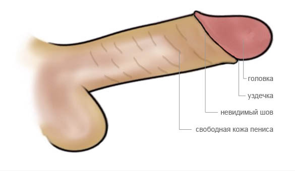 Обрезание крайней плоти — фото после обрезания, операция, цена