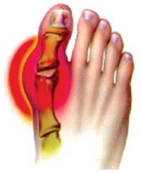 артроз стопы симптомы