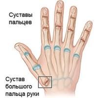 артроз руки симптомы