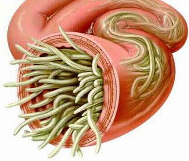 кишечная непроходимость паразиты