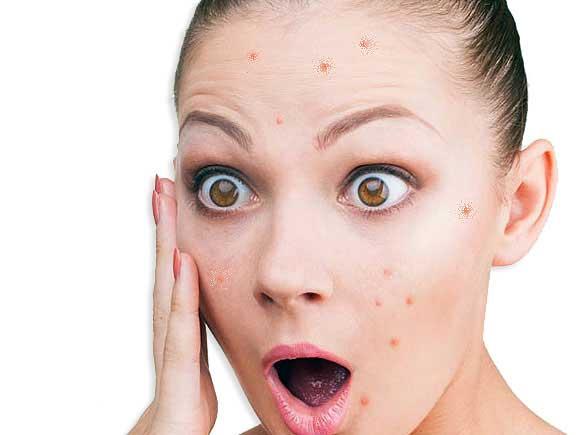 Акне — причины и способы лечения угрей