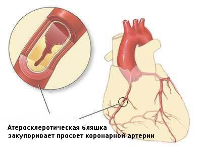 ибс - ишемическая болезнь сердца
