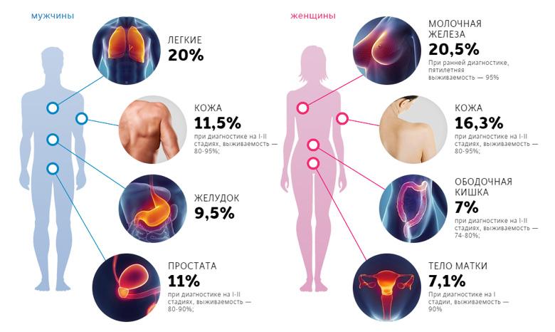 Статистика заболеваемости раком по локализации и полу