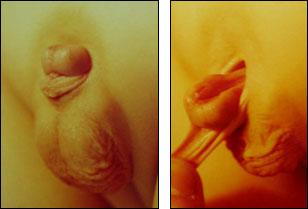 Эписпадия — тотальная эписпадия у мальчиков лечение, фото эписпадии у детей