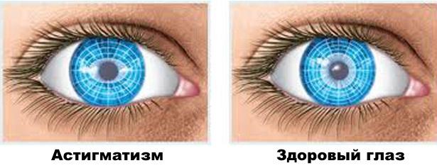 Астигматизм глаз — коррекция, степени, лечение астигматизма у ...