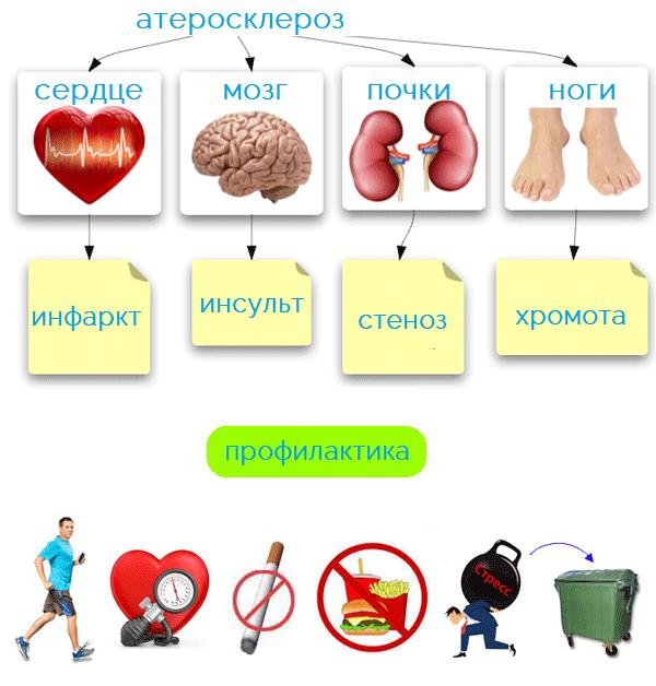 как лечить атеросклероз