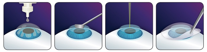 фоторефракционной кератэктомии фото