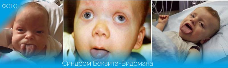 фото детей с синдромом Беквита-Видемана