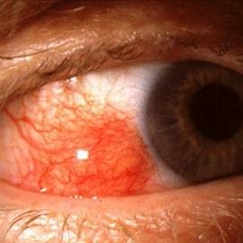 Эписклерит глаза — причины, симптомы, способы лечения