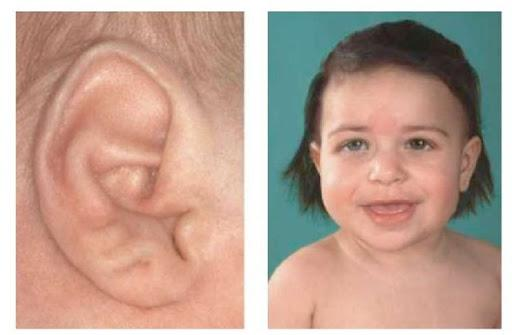 Синдром Беквита-Видемана — фото, симптомы, диагностика