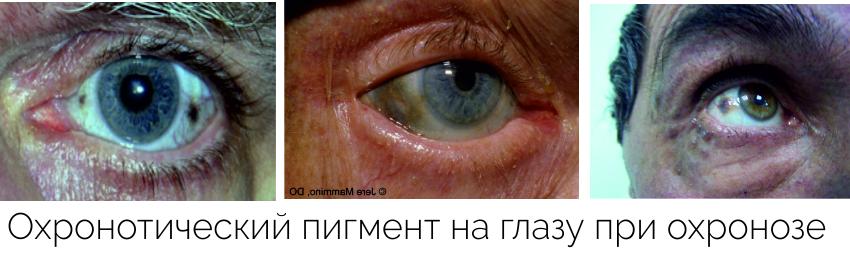 Охронотический пигмент на глазу при охронозе