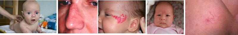 Телеангиэктазия фото у детей