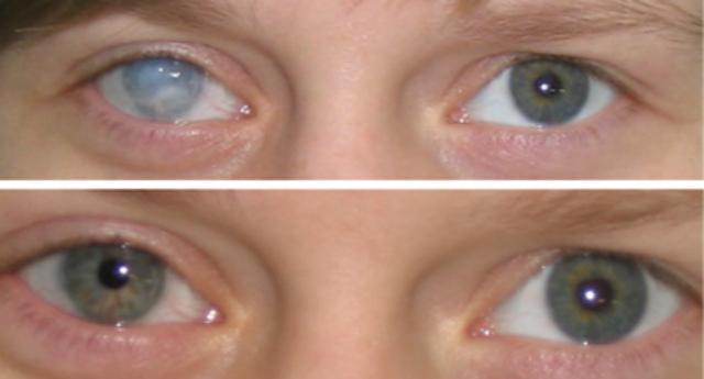линзы при дефекте глаза