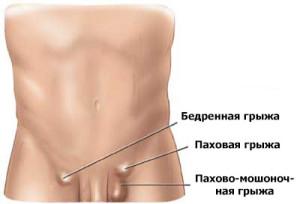 Паховая грыжа — симптомы, лечение, лечение операцией