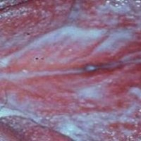 Молочница (кандидоз) — лечение, симптомы, свечи и таблетки