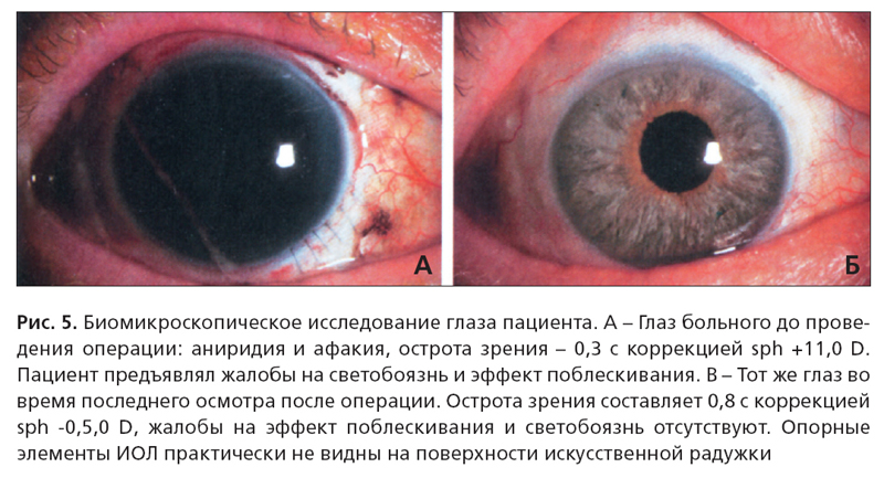 лечение аниридии