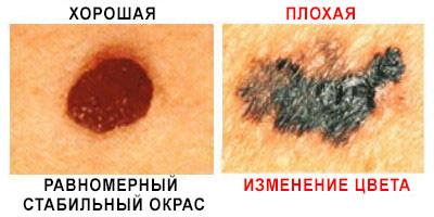 окрас фото рака кожи