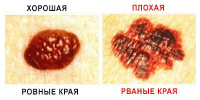 рак кожи фото по краю