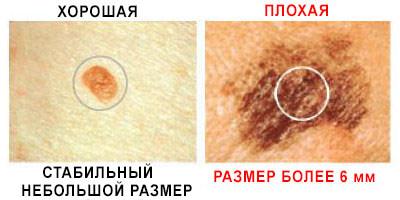 размер рака кожи фото
