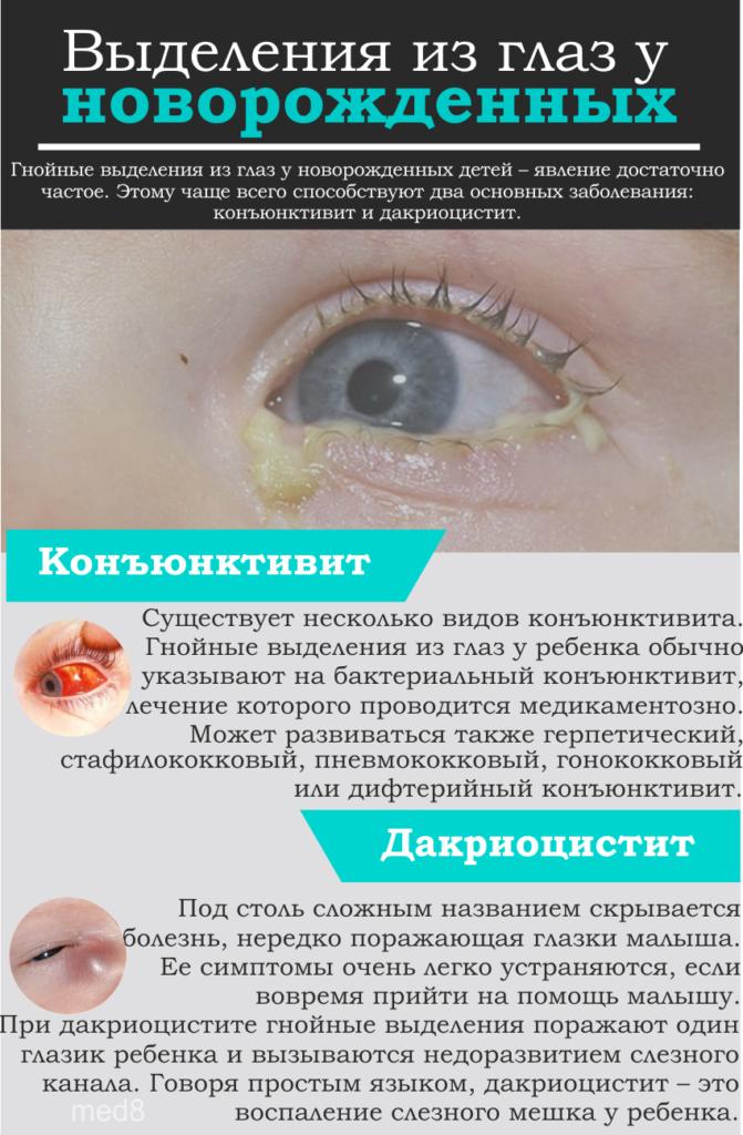 Выделения из глаз у новорожденных