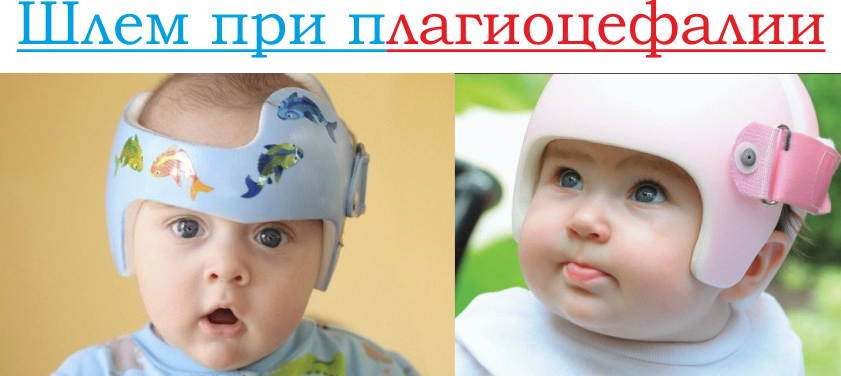 Шлем при плагиоцефалии