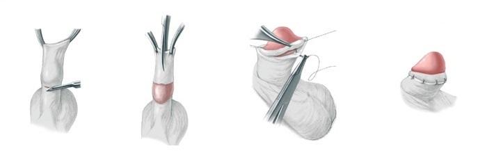 операция по лечению фимоза