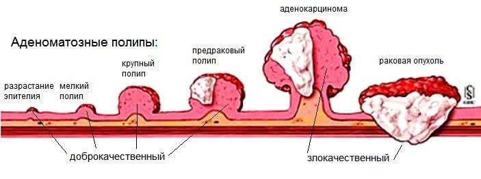 Полипы прямой кишки