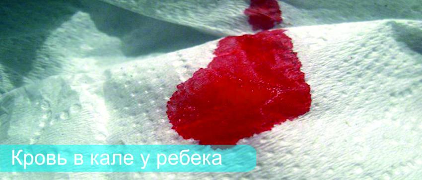 кровь в кале у детей фото