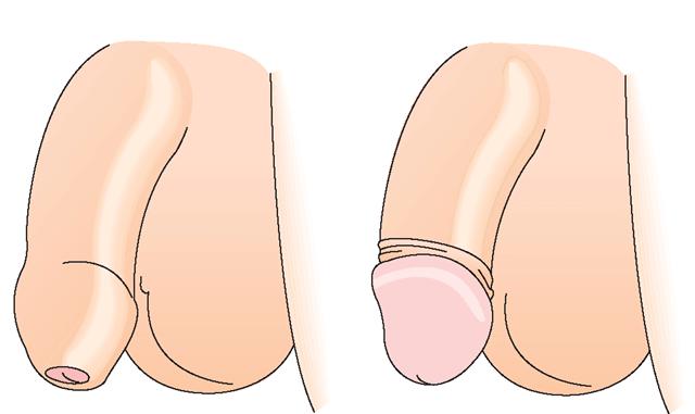 обрезание до и после