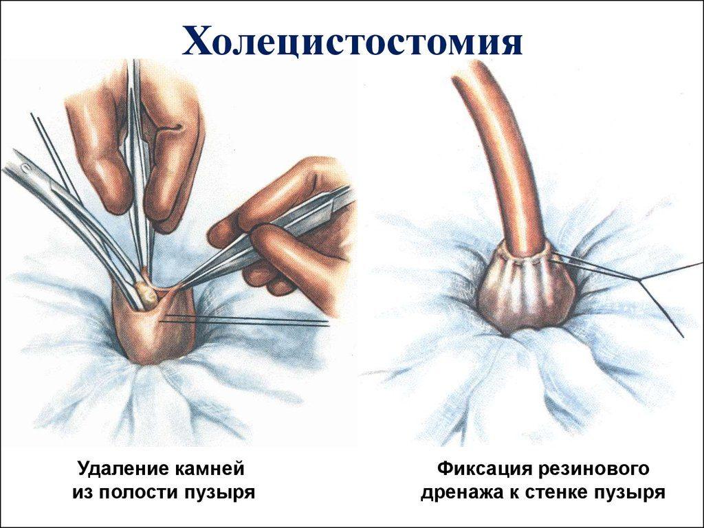 Холецистостомия операция