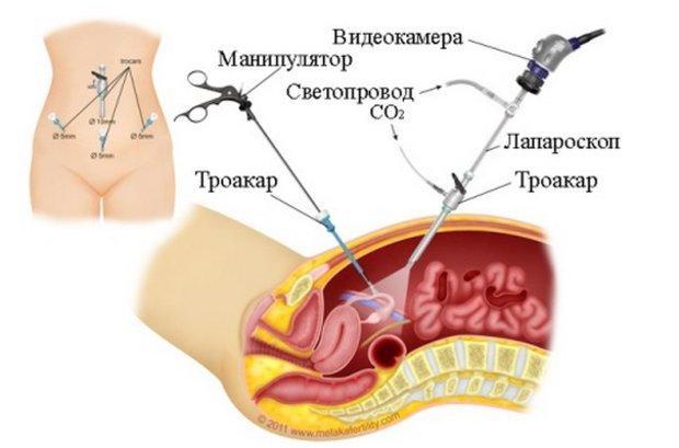 Лапароскопия при двурогой матке