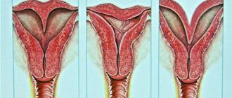Причины двурогой матки