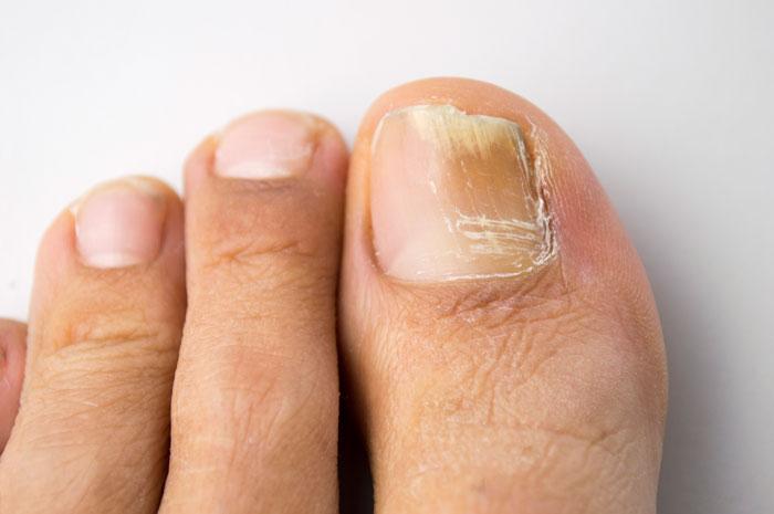 грибок ногтя фото