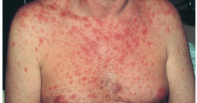 сыпь внешний признак ВИЧ